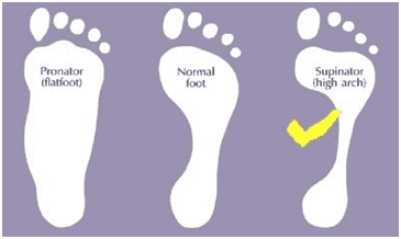 Arched Feet Diagrams