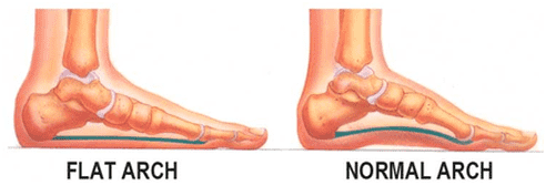 Flat Arch Vs Normal Arch Foot