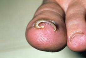 Ingrown Toenails 2