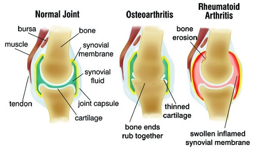 Joints With Arthritis In The Feet