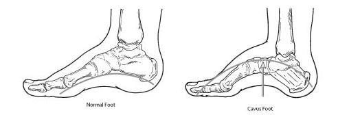 Normal And Arched Feet