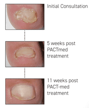 Pact Therapy Fungal Toenails Success