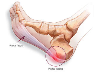 Plantar Fascia In Foot
