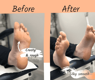 Skin Care Before And After Podiatry