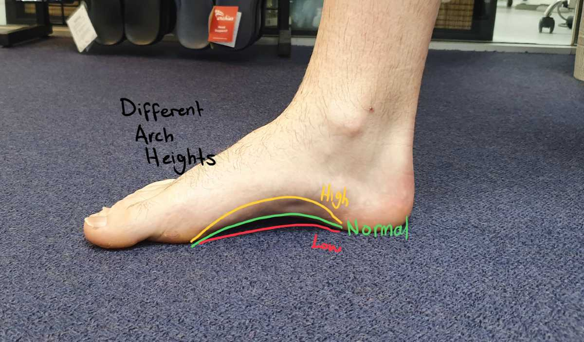Foot arch height